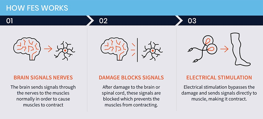 """3 panel Image explaining the three phases of how FES (functional electrical stimulation) works. In Phase 1 an illustration of the brain points to an illustration of the nerve and reads, """"Brain Signals Nerves"""". In the second panel, an illustration of a wall appears between the brain and nerve and the caption reads, """"Damage Blocks Signal"""". In the third panel, an illustration of electrodes with an arrow pointing to an illustration of a leg muscles are accompanied by the words, """"Electrical Stimulation""""."""