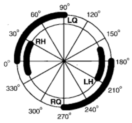 FES bike pedal position for quadriceps